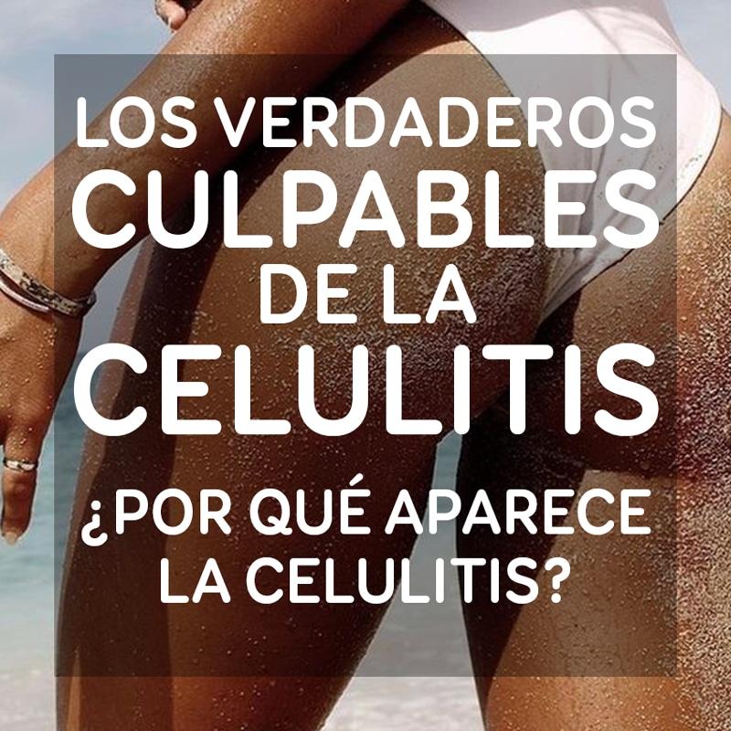 det-celulitis-culpables